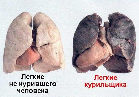 Сравнение лёгких курильщика и некурящего человека