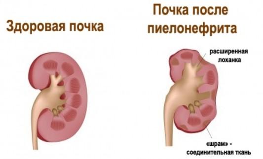 Сравнение здоровой и