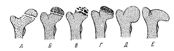 Стадии развития болезни Пертеса