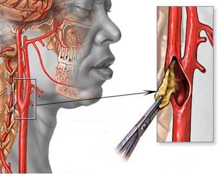 Стеноз сонной артерии - причины, симптомы и лечение