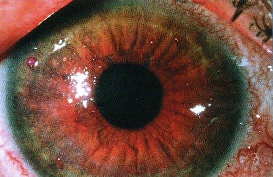 Сухой кератоконъюнктивит у больного с синдромом «сухого» глаза