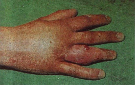 Панариций пальца: причины, признаки, симптомы и лечение