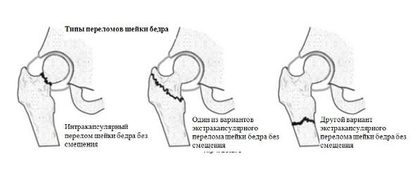 Типы переломов шейки бедра
