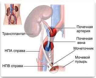 Поликистоз почек у человека лечение 17