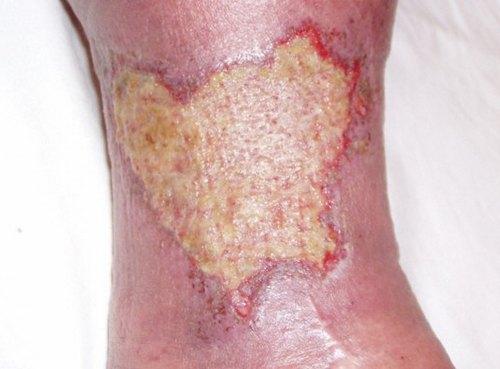 Трофические язвы повышают риск развития микоза кожи