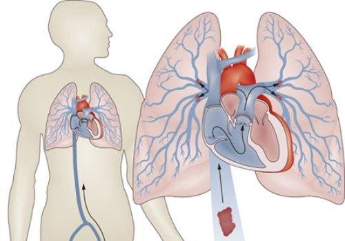 Тромбоэмболия лёгочной артерии