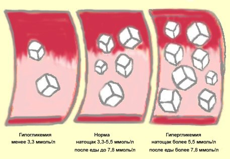 Уровень сахара в крови при гипергликемии