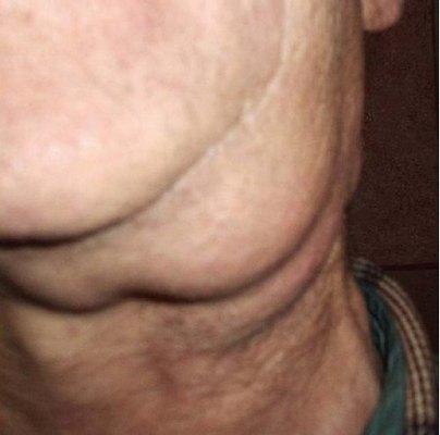 Увеличение лимфатических узлов в подчелюстной области слева