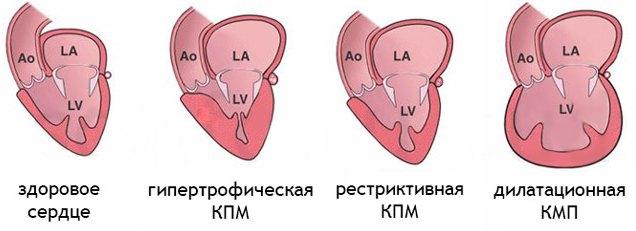Виды первичной кардиомиопатии