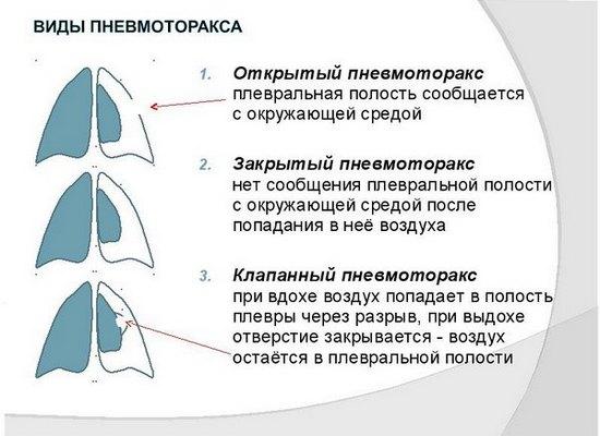 Виды пневмоторакса