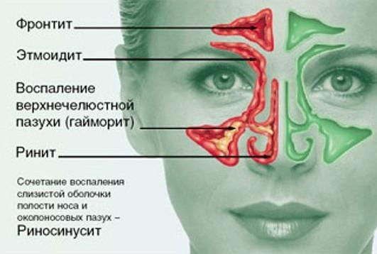 Виды риносинусита