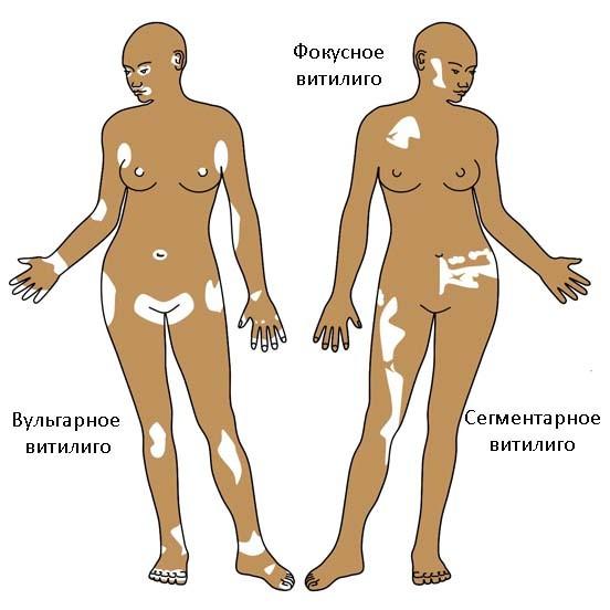 хвороба вітіліго