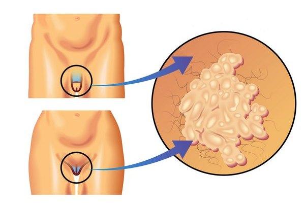 Вирус папилломы у мужчин и женщин