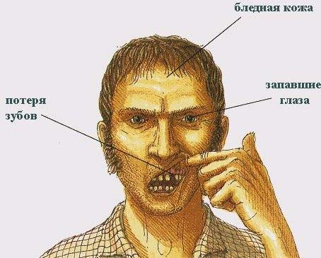 фото цинга болезнь