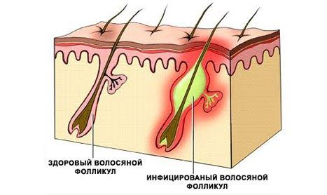 Воспаление волосяного фолликула