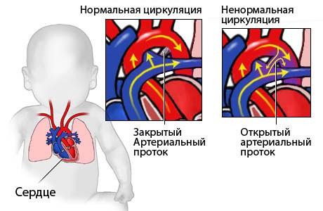 Как проявляется порок сердца у ребенка