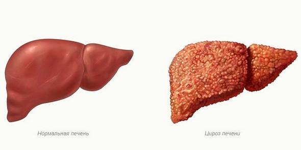 Здоровая печень и поражённая циррозом