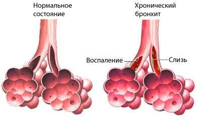 Здоровые бронхи и при хроническом бронхите