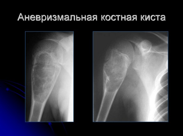 Аневризмальная костная киста на рентгене