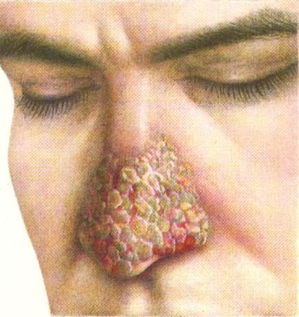 Аспергиллез кожи носа