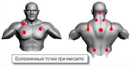 Болезненные точки при миозите