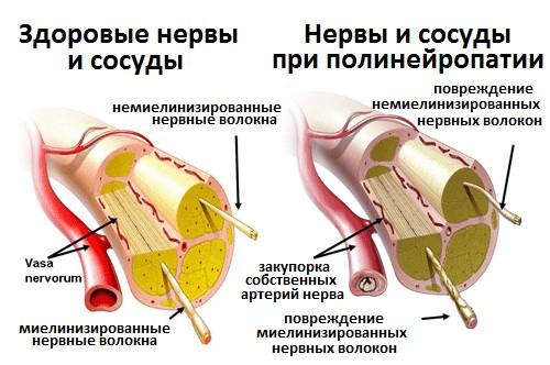 Нервные волокна и сахарный диабет