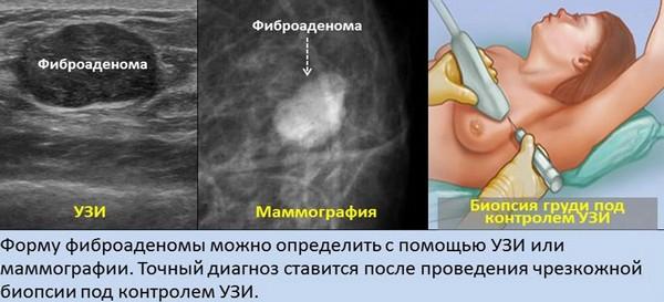 Диагностика аденомы молочной железы