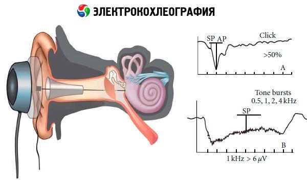 Электрокохлеография