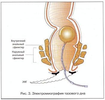 Электромиография тазового дна