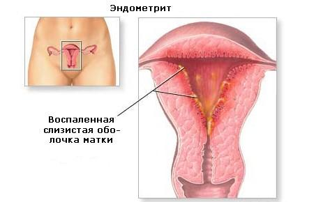 Боли во время секса при периметрите