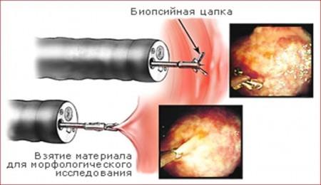 Эндоскопическая биопсия