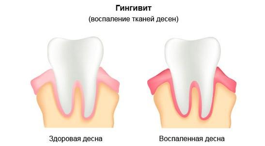 Температура при воспалении зубов мудрости