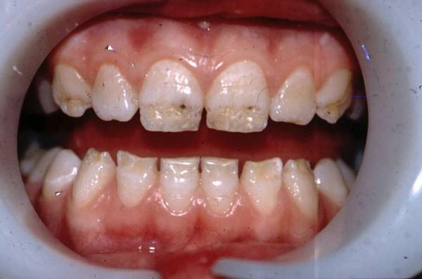 Гипоплазия эмали зубов у подростков