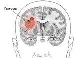 Глиома головного мозга