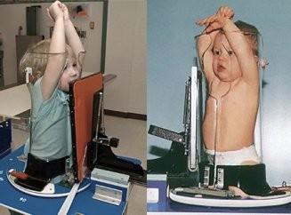 Как делается рентген лёгких ребенку