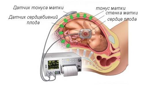 Маловодие при беременности 22 недели