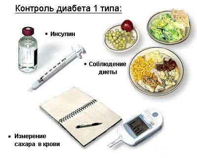 Контроль диабета 1 типа