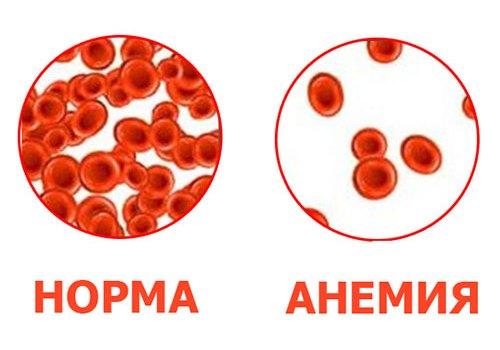 Концентрация эритроцитов в норме и при анемии