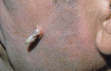 Кожный рог на лице