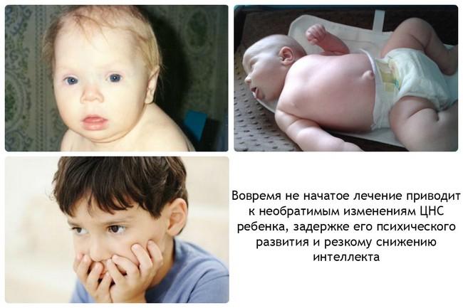 гипотиреоз симптомы у детей фото
