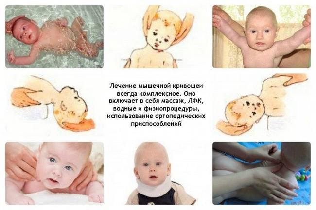 Лечение кривошеи у детей
