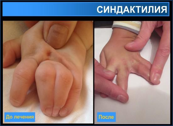 Лечение синдактилии