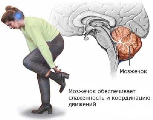 Месторасположение мозжечка