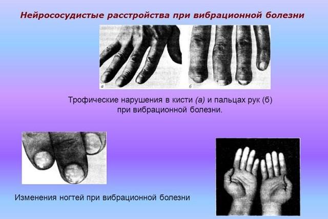 Нейрорасстройства при вибрационной болезни
