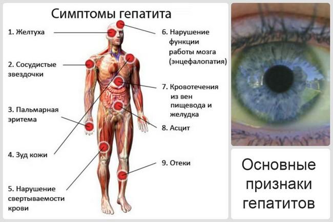 Основные симптомы гепатита Е