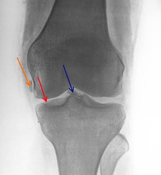 Остеохондропатия коленного сустава на рентгене