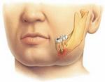 Пародонтальный абсцесс