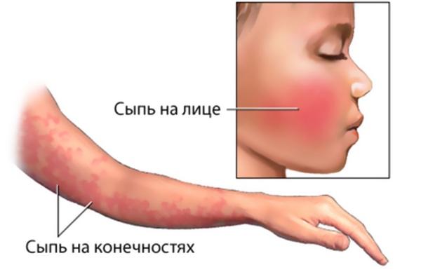 парвовирус b19
