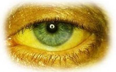 Пожелтение слизистых - основной симптом гепатита