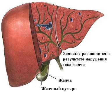 Причины холестаза